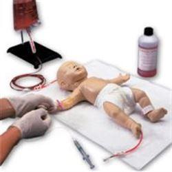 Varicosity prima di gravidanza. come trattare. forum
